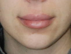Fillers | Injections for the Lips