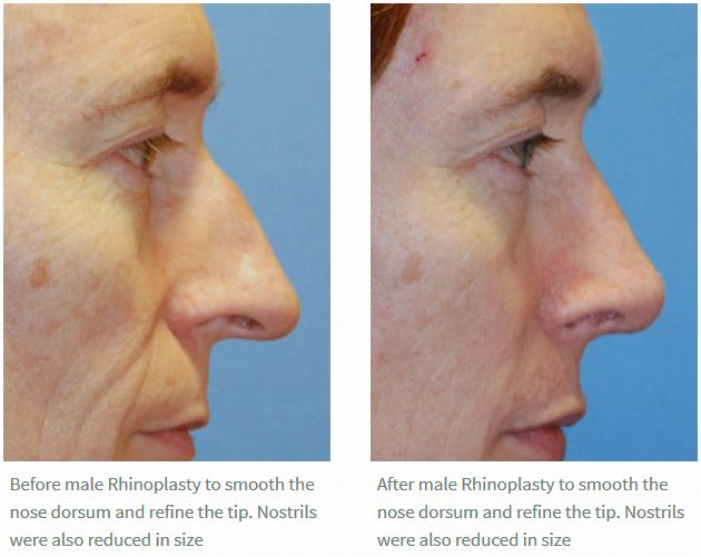 Wide Nose Rhinoplasty Before and After