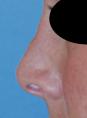Nose Irregularities Close Up