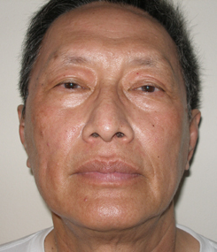 asian laser resurfacing front after