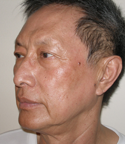 asian laser resurfacing oblique after