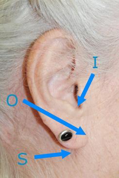 earlobe-ptosis-pseudoptosis