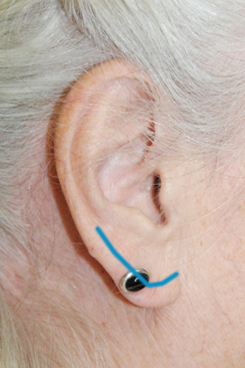 earlobe-shaping-reduction-incision-line