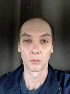 Transgender-Rhinoplasty-Lip-VY-Augmentation-2-months-Front