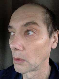 Transgender-Rhinoplasty-Lip-VY-Augmentation-2-months-Left-Oblique