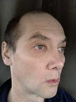 Transgender-Rhinoplasty-Lip-VY-Augmentation-2-months-Right-Oblique