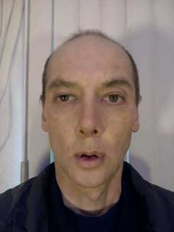 Transgender-Rhinoplasty-Lip-VY-Augmentation-day-17-Front