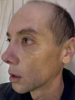 Transgender-Rhinoplasty-Lip-VY-Augmentation-day-17-Left-Oblique