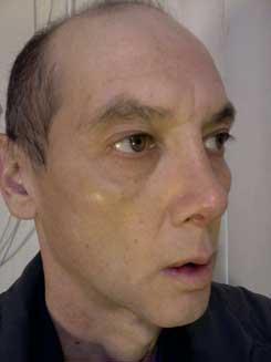 Transgender-Rhinoplasty-Lip-VY-Augmentation-day-17-Right-Oblique