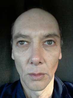 Transgender-Rhinoplasty-Lip-VY-Augmentation-day-26-Front