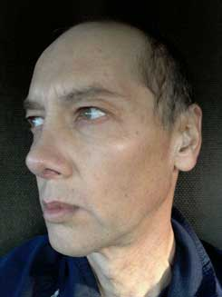 Transgender-Rhinoplasty-Lip-VY-Augmentation-day-26-Left-Oblique