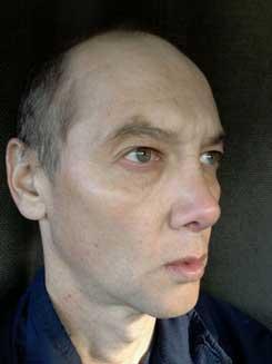 Transgender-Rhinoplasty-Lip-VY-Augmentation-day-26-Right-Oblique