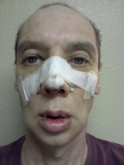 Day four | 4 after Rhinoplasty and VY Lip Augmentati-front