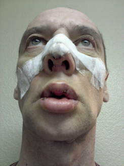 Day six | 6 after Rhinoplasty and VY Lip Augmentation -view-from-below