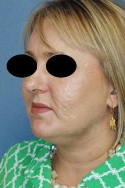 Acne Scar vitalizer Treatment After