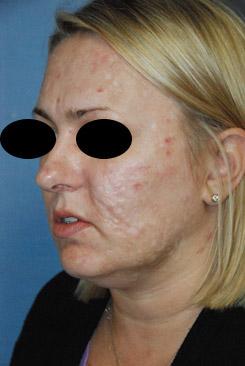 Acne Scar vitalizer Treatment Before