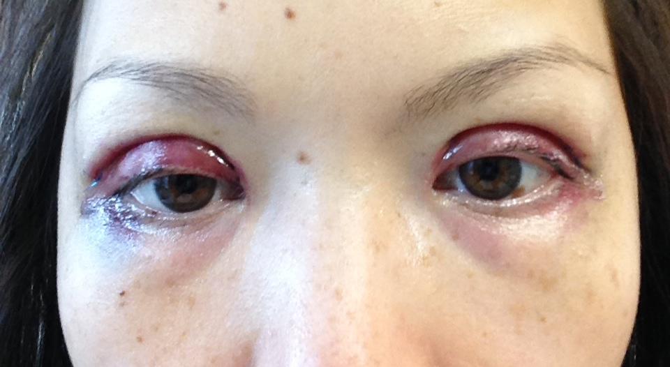 Koreans Get Double Eyelids For A Week – Fondos de Pantalla