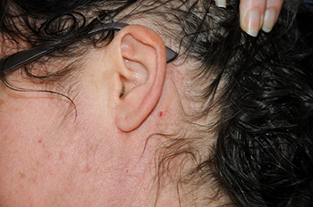 Images of Incision 6 months after Neck Lift