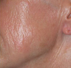 Before Chemical Peel Trichloroacetic Acid, Jessner's, Dermasanding Cheek