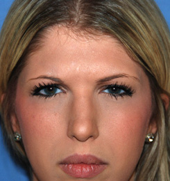 Botox® Dysport® for Glabellar Frown 11 Lines After