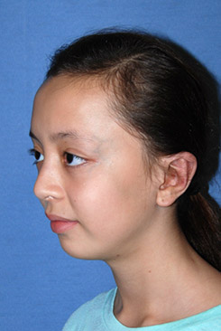 Cup Lop Constricted Ear After Otoplasty Oblique