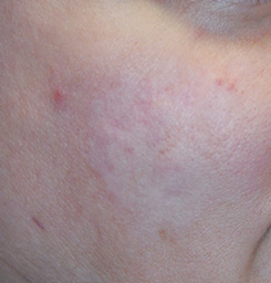Scar Revision With Laser Resurfacing After