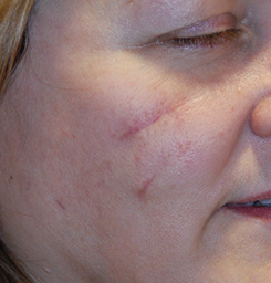 Scar Revision With Laser Resurfacing Before