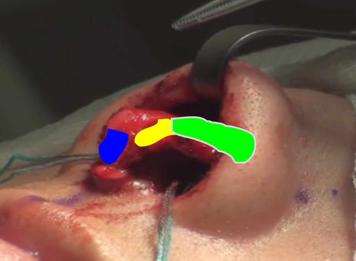Live-Picture-Nasal-Cartilages