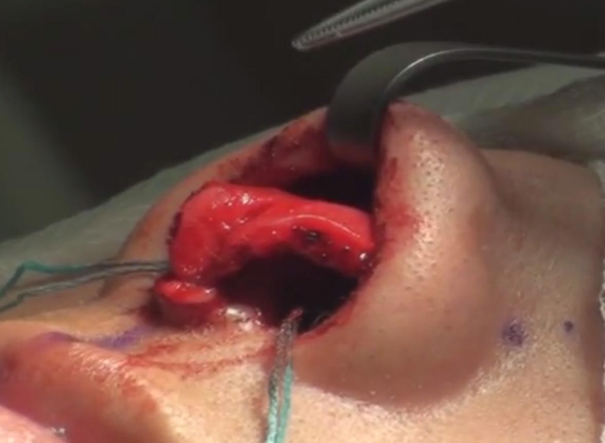 Rhinoplasty-Real-Life-Anatomy